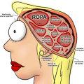 Miniatura de Cerebro De La Mujer